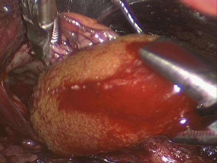 Уретеролитотомия фото